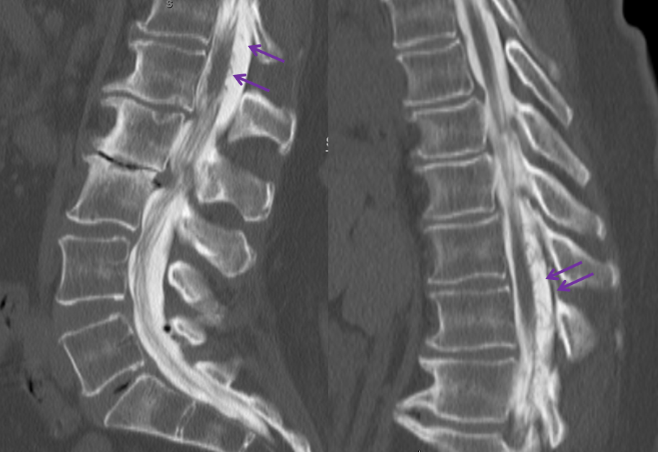 Spinal Dural Fistula CT Myelogram