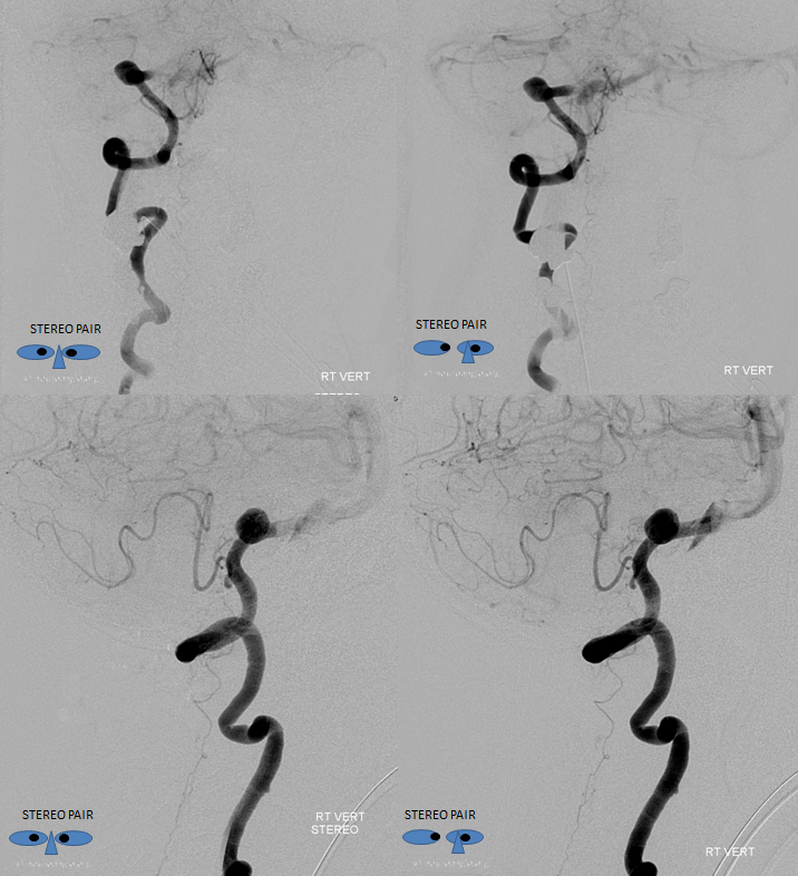 Lateral Spinal Artery Stereo