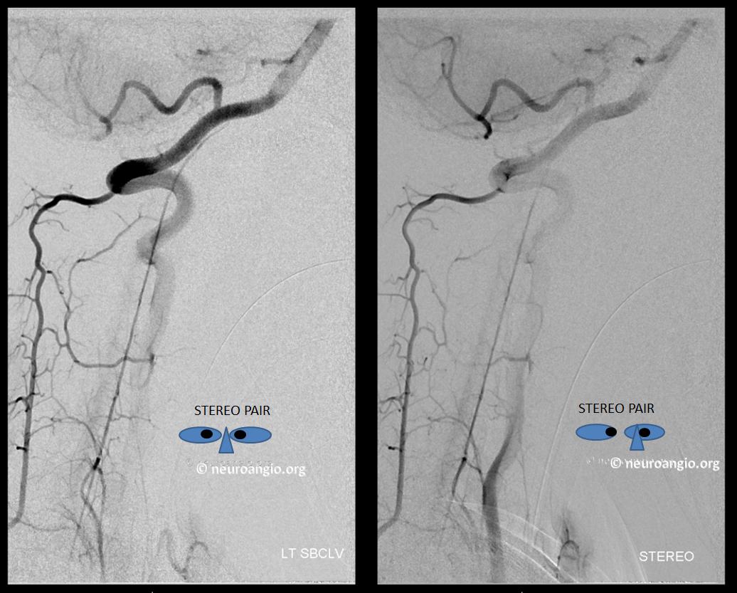 duplicated anterior spinal artery