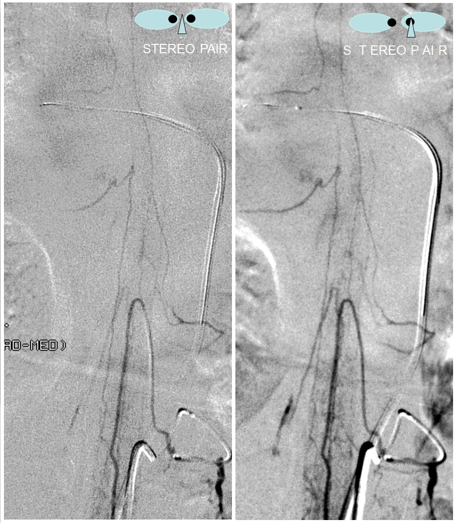 Spinal Arterial Anatomy | neuroangio.org
