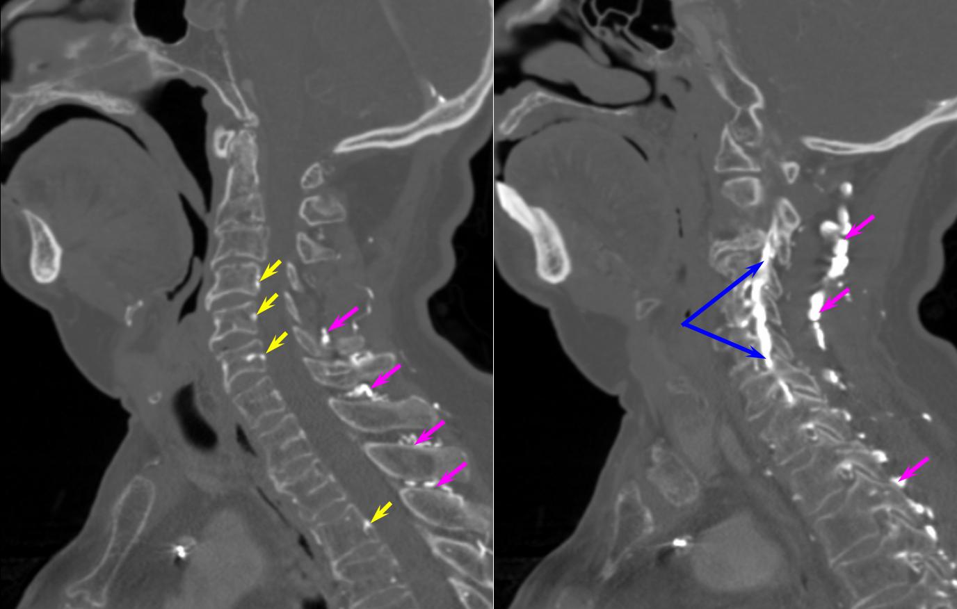 Spinal Venous Anatomy Neuroangio