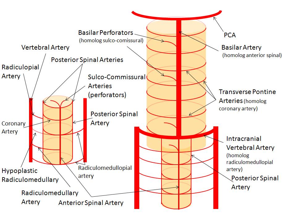 Basilar Artery Neuroangio