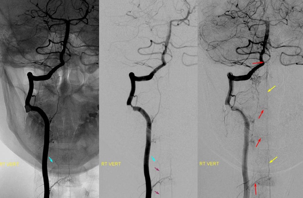 Vertebral Artery Neuroangio