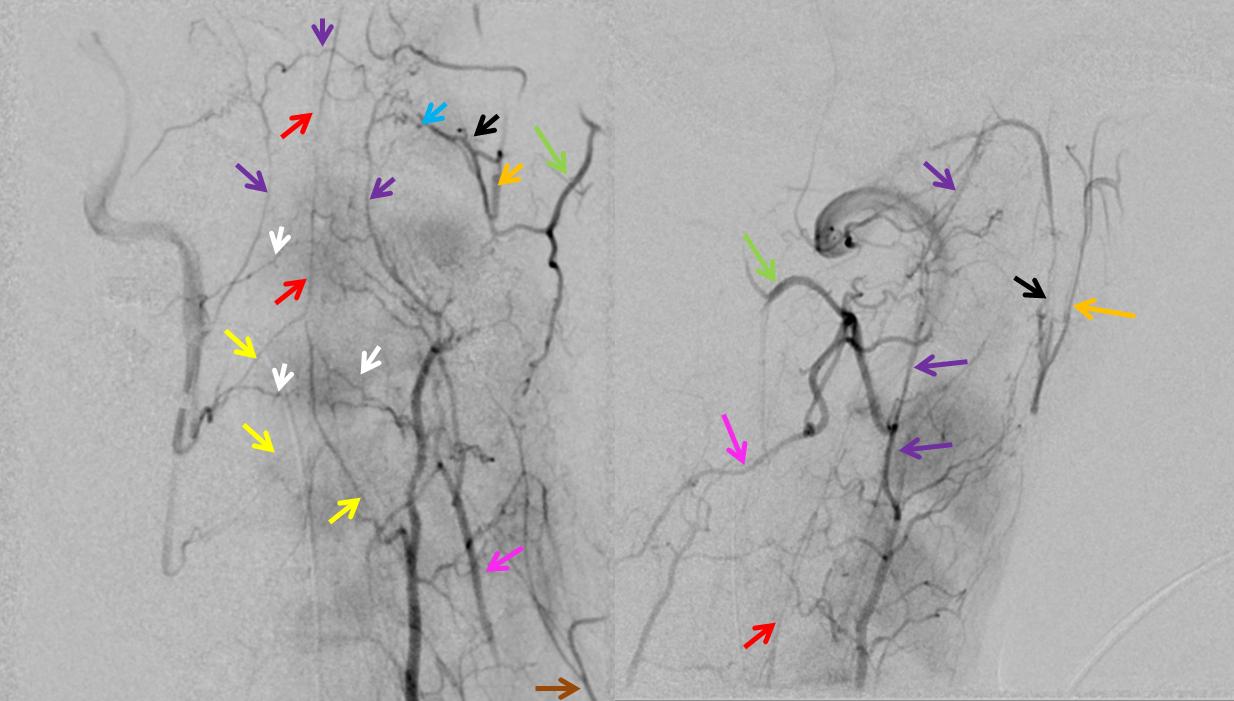 vertebral artery anastomoses