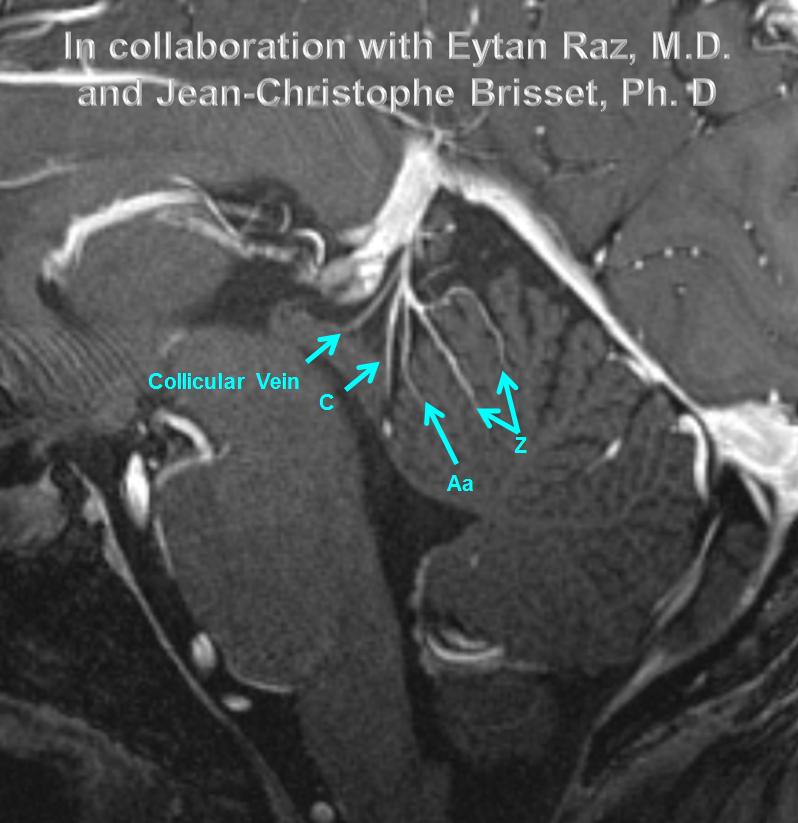 http://www.neuroangio.org/wp-content/uploads/Venous/Posterior_Fossa_Veins/V_7T_MRI_culmen_collicular_veins.png