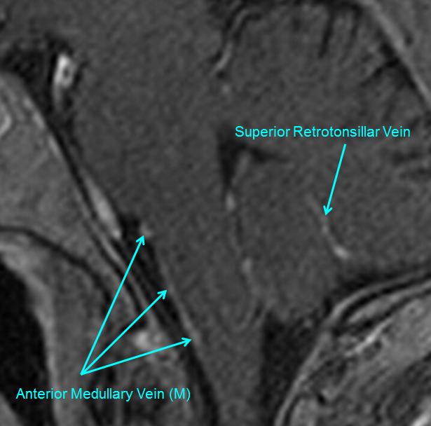 http://www.neuroangio.org/wp-content/uploads/Venous/Posterior_Fossa_Veins/V_anterior_medullary_vein_MRI.png