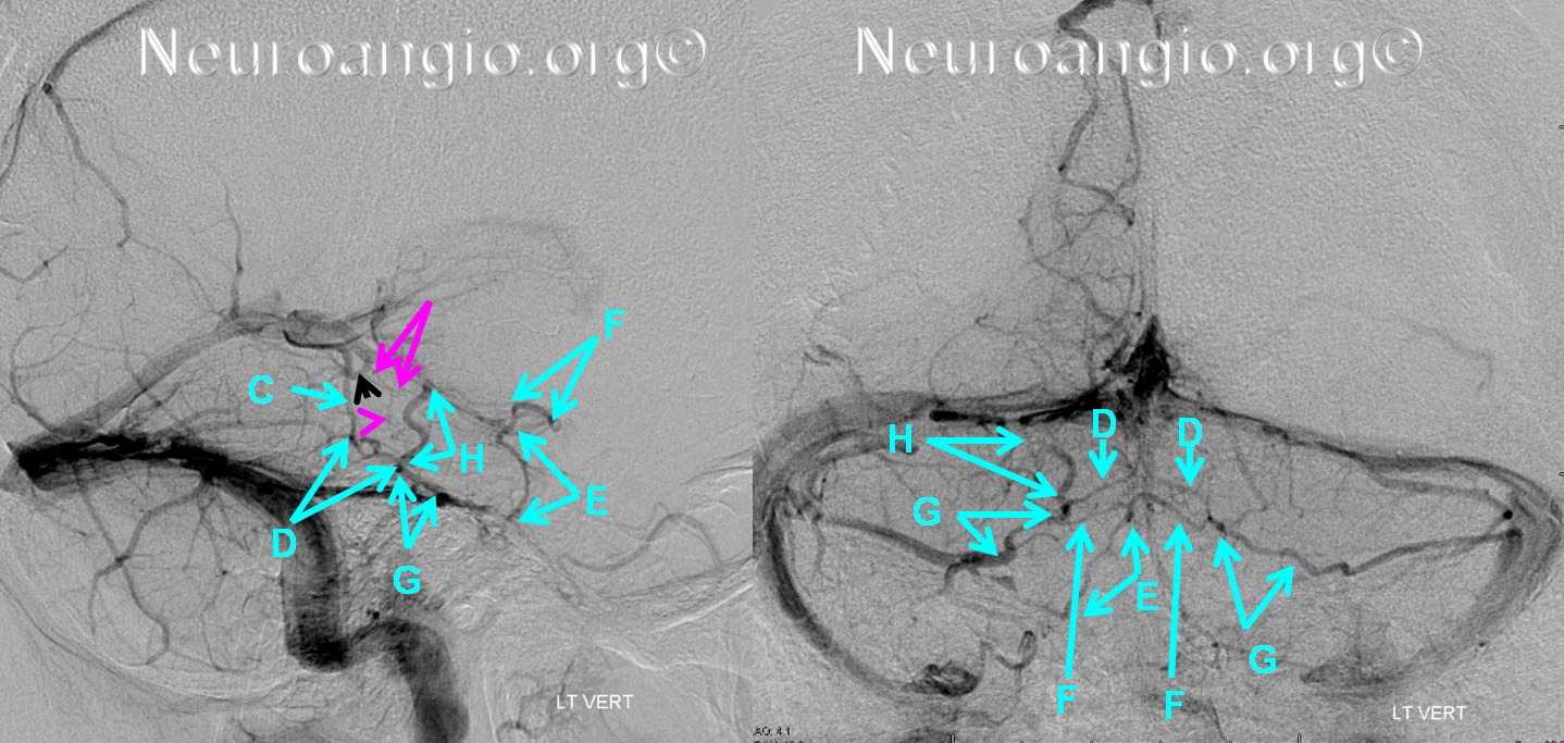 http://www.neuroangio.org/wp-content/uploads/Venous/Posterior_Fossa_Veins/V_balanced_brainstem_brachial_tectal.png