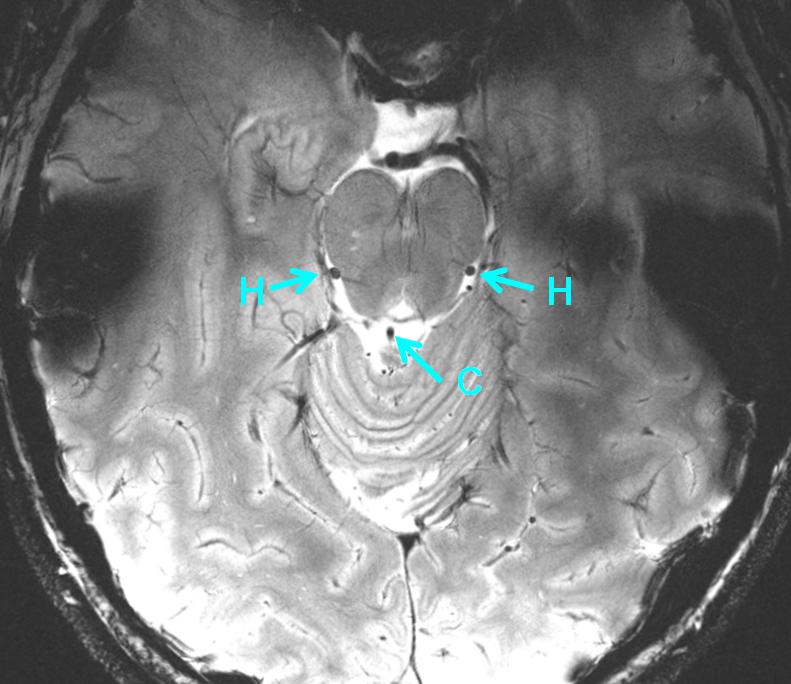 lateral_mesencephalic_vein_precentral_vein_MRI_7T.png