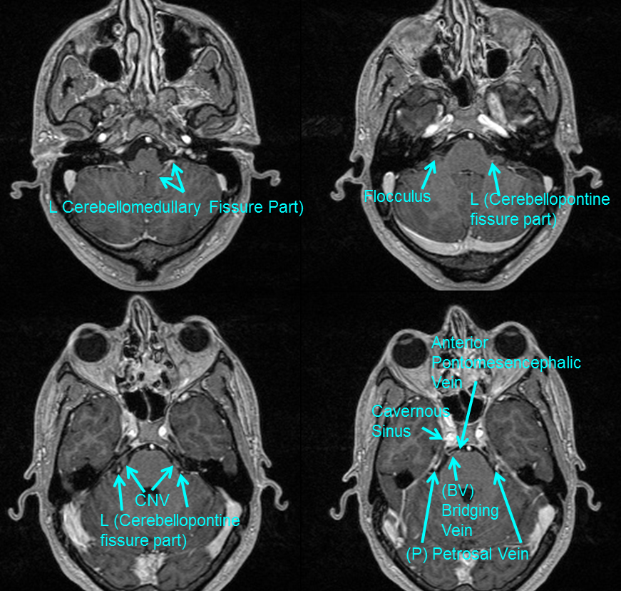 http://www.neuroangio.org/wp-content/uploads/Venous/Posterior_Fossa_Veins/V_lateral_recess_MRI.png