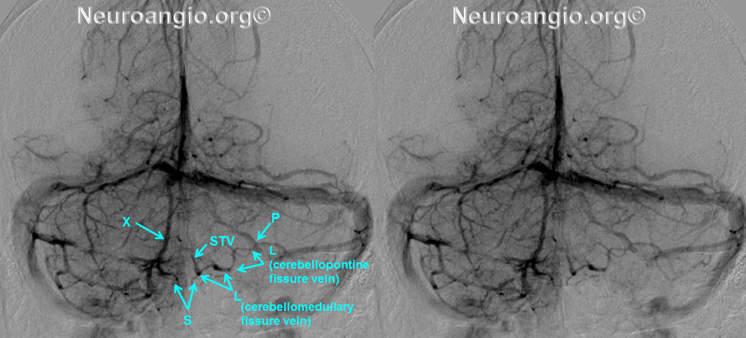 http://www.neuroangio.org/wp-content/uploads/Venous/Posterior_Fossa_Veins/V_lateral_recess_vein_tributaries.png