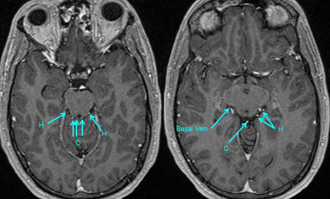 http://www.neuroangio.org/wp-content/uploads/Venous/Posterior_Fossa_Veins/V_precentral_vein_Brachial_tributaries_MRI.png