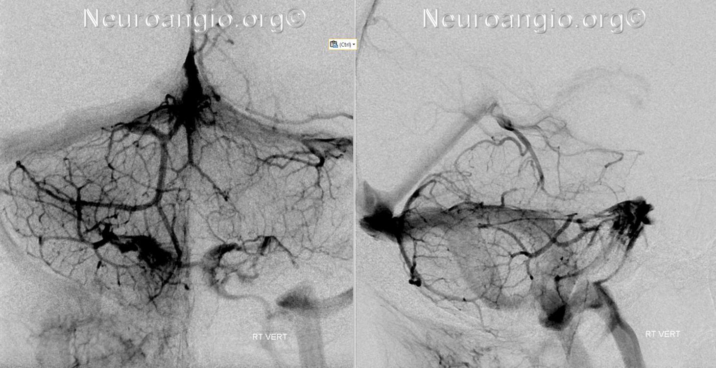 http://www.neuroangio.org/wp-content/uploads/Venous/Posterior_Fossa_Veins/V_precentral_vein_brachial_tributaries_no_labels.png