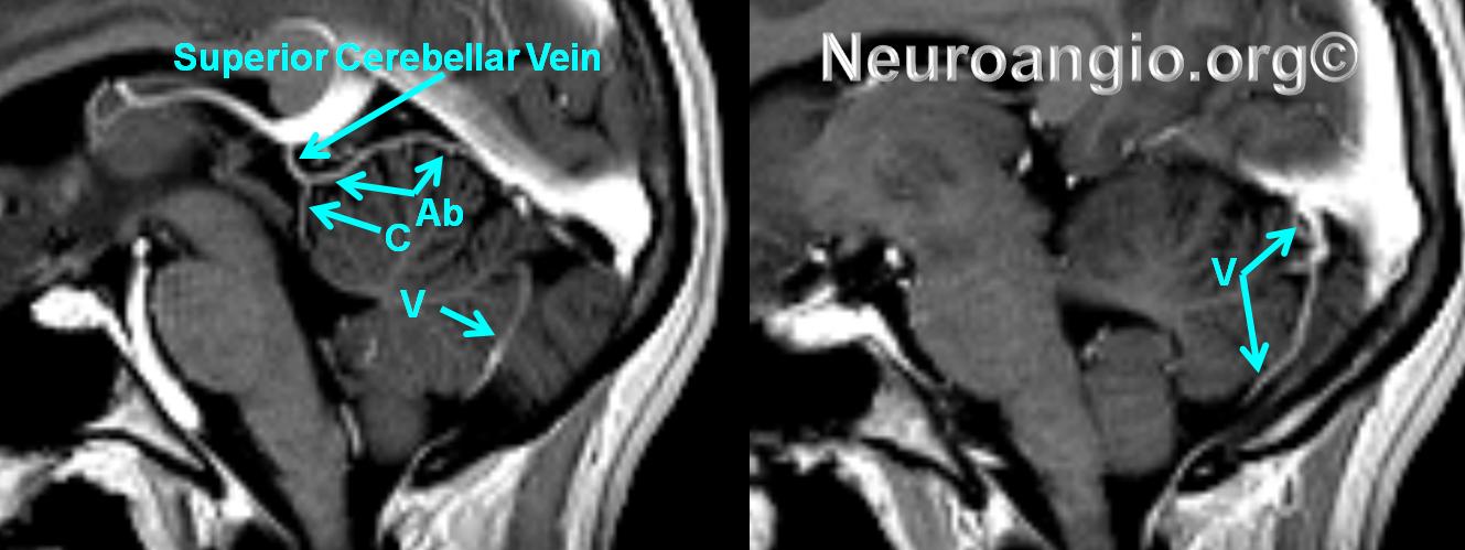 http://www.neuroangio.org/wp-content/uploads/Venous/Posterior_Fossa_Veins/V_superior_cerebellar_vein.png