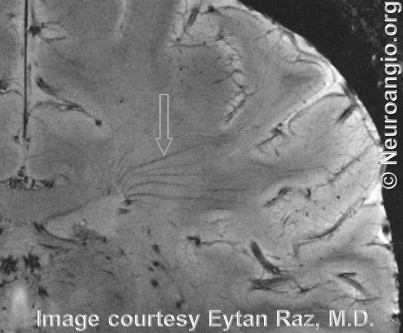 Transmedullary veins MRI 7T