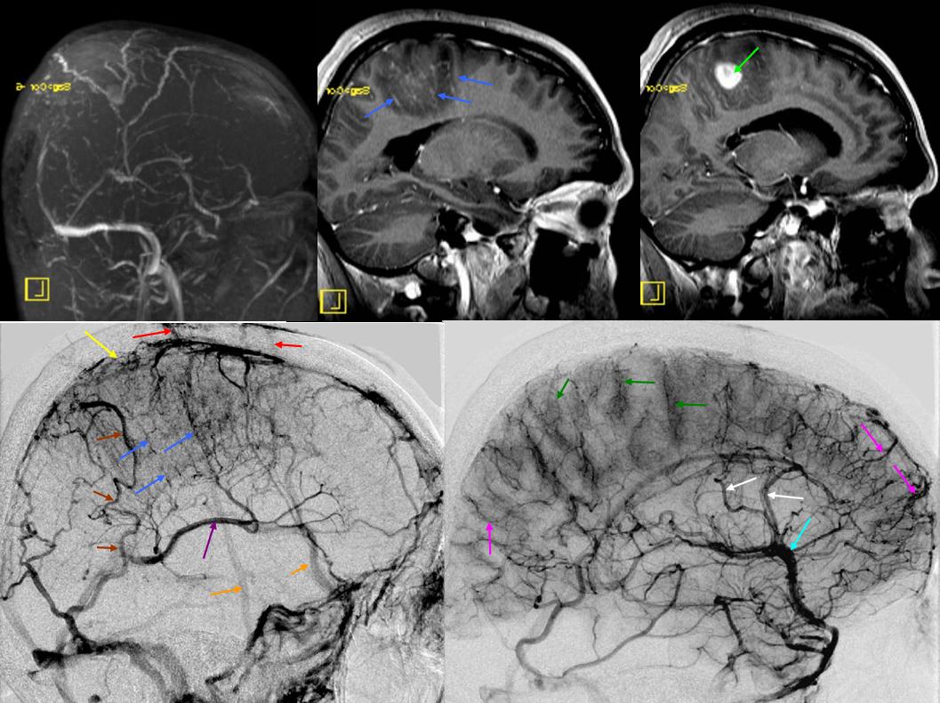Deep Venous System | neuroangio.org