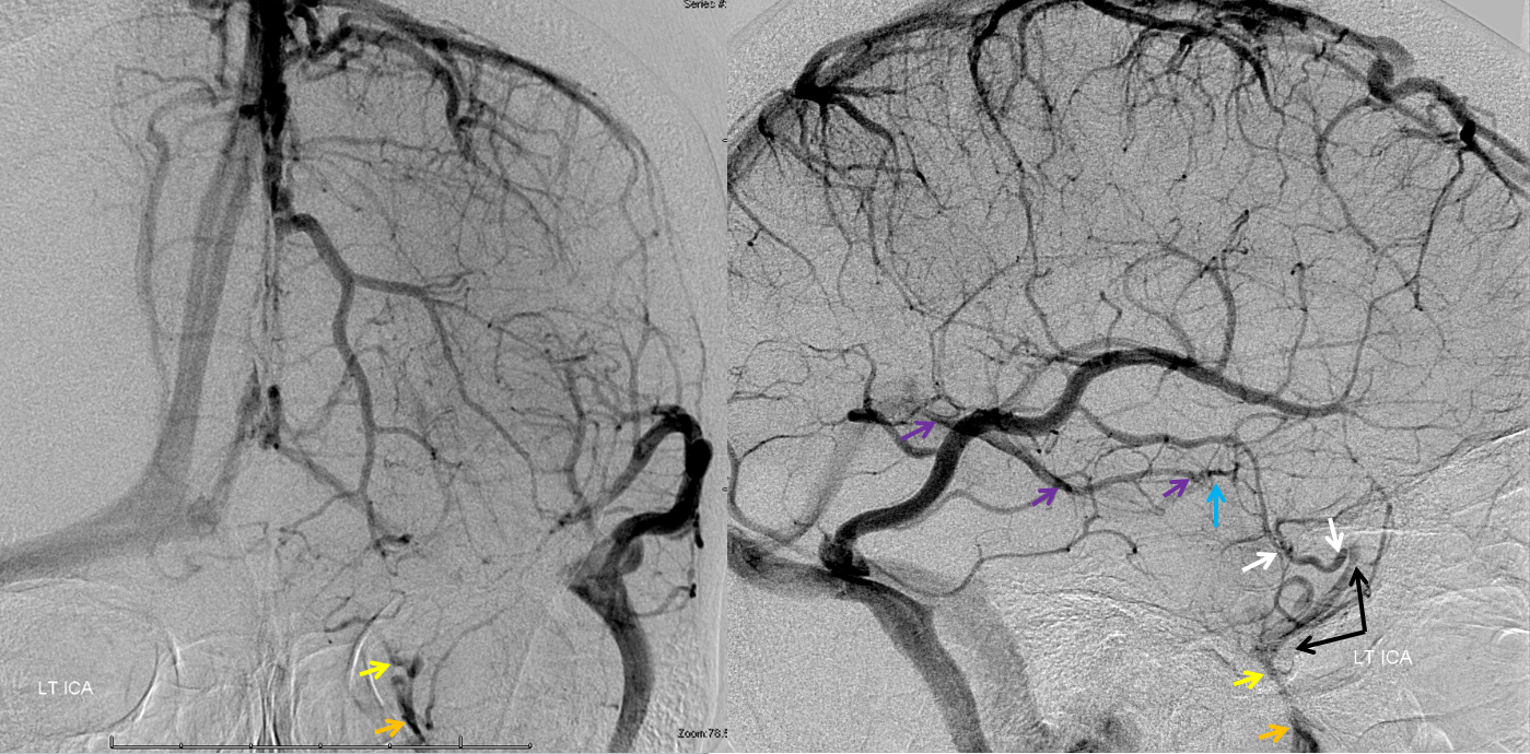 http://www.neuroangio.org/wp-content/uploads/Venous/V_cavernous_sinus_angiogram_LT_ICA.png