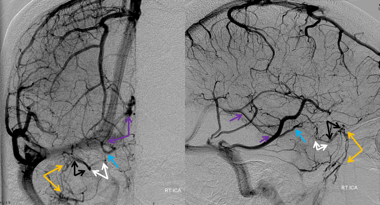 http://www.neuroangio.org/wp-content/uploads/Venous/V_cavernous_sinus_angiogram_RT_ICA.png