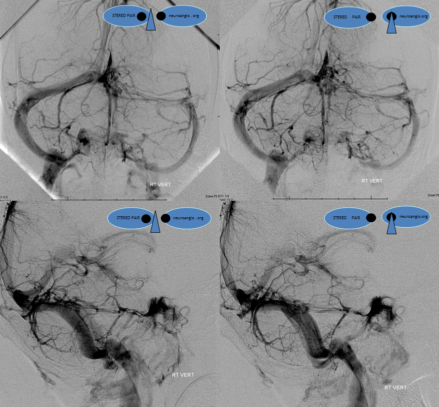 http://www.neuroangio.org/wp-content/uploads/Venous/V_cavernous_sinus_angiogram_VERT.png