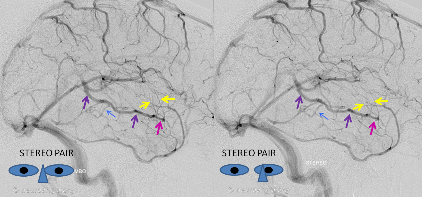 http://www.neuroangio.org/wp-content/uploads/Venous/V_cavernous_sinus_basal_vein_no_connection.png