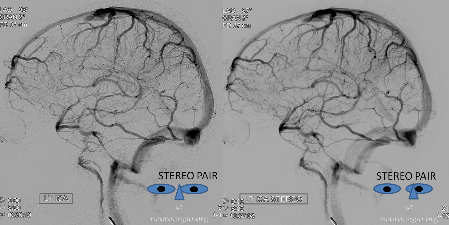 http://www.neuroangio.org/wp-content/uploads/Venous/V_cavernous_sinus_stereo_full_basal_vein_1.png