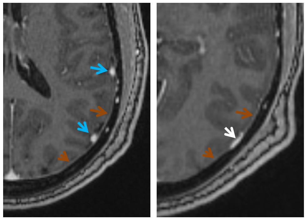 dural sinus MRI