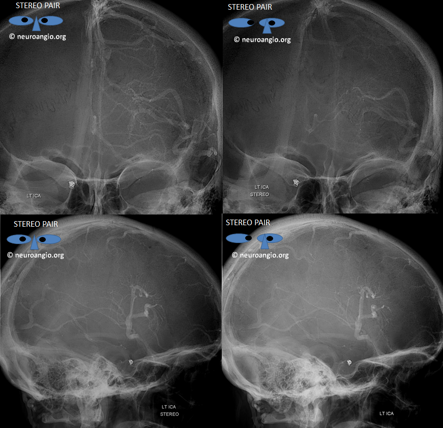dural sinus and dva