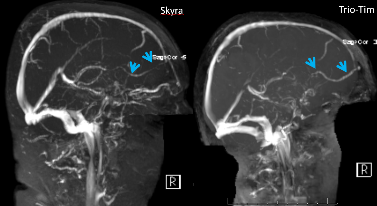 mrv frontal vein