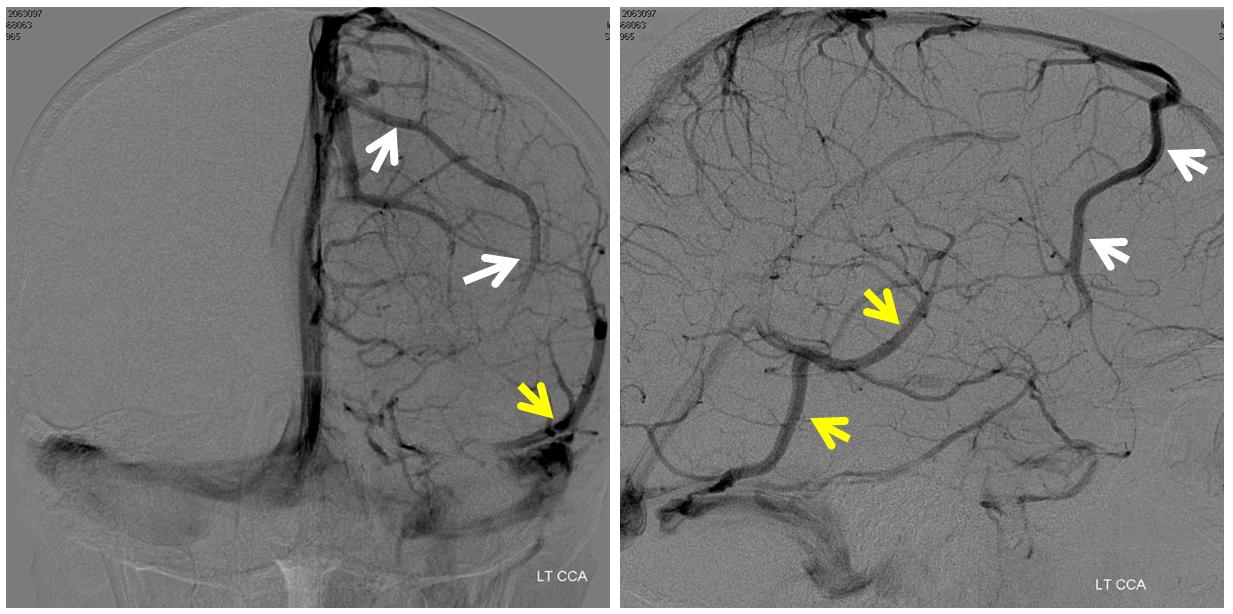 frontal veins