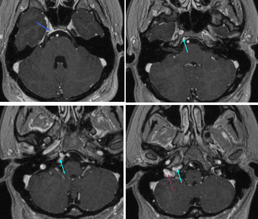 Cavernous+sinus+thrombosis+mri+findings