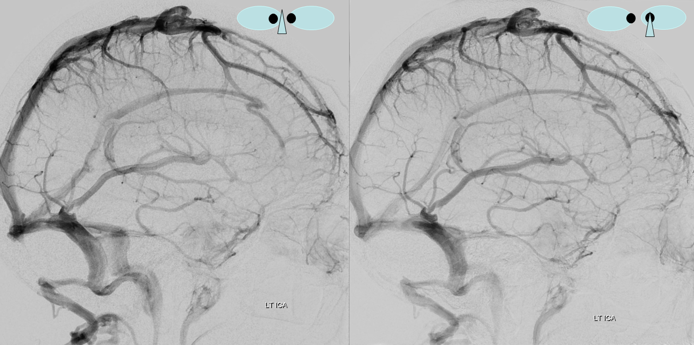 Inferior Sagittal Sinus