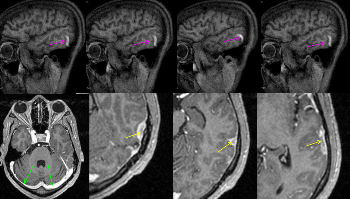 Superficial Venous System | neuroangio.org