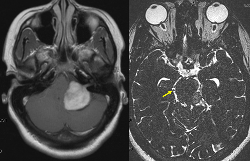 V_posterior_fossa_anterior_group_and_interpeduncular_MRI.png