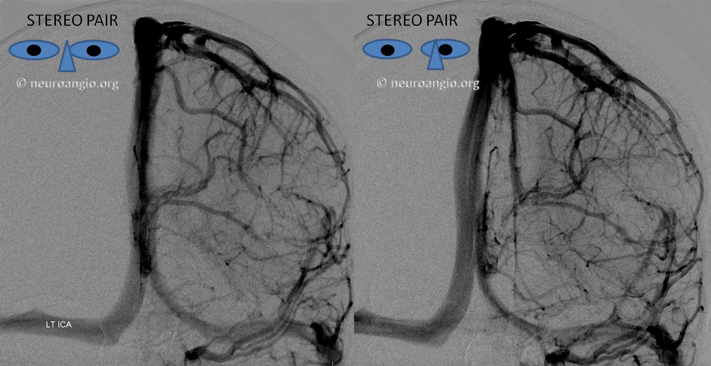 http://www.neuroangio.org/wp-content/uploads/Venous/V_sylvian_veins_no_sphenoparietal_sinus_2.png