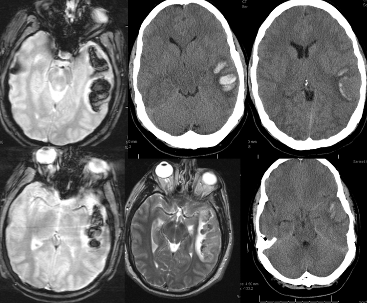 MRI  hemoflash and T2  and CT images of left temporal hemorrhage    Intraparenchymal Hemorrhage Mri