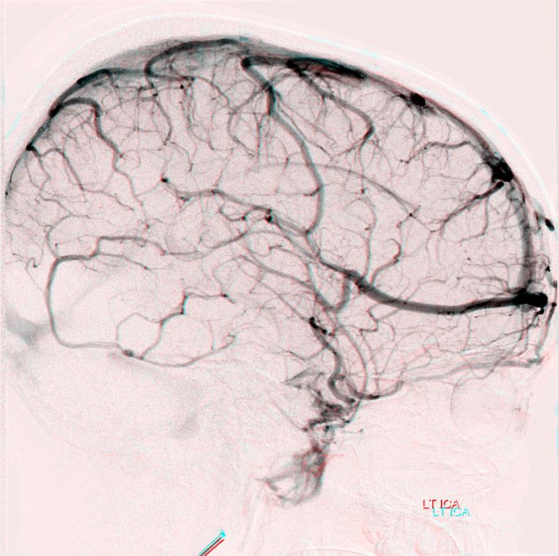 Venous Sinuses | neuroangio org