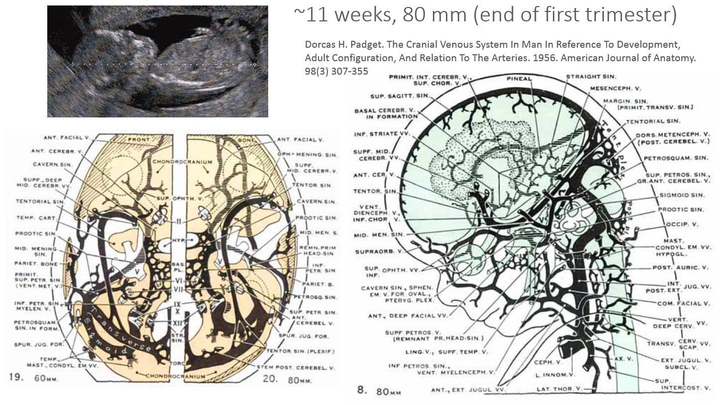 http://www.neuroangio.org/wp-content/uploads/Venous_Embryology/Venous_Embryology_neuroangio_18.PNG