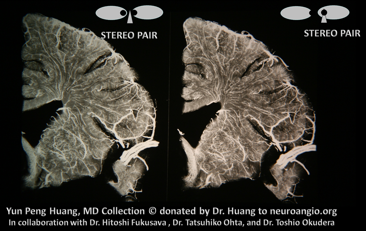 Yun Peng Huang Collection