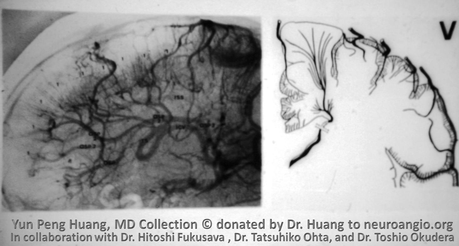 Yun Peng Huang Collection MVM DVA