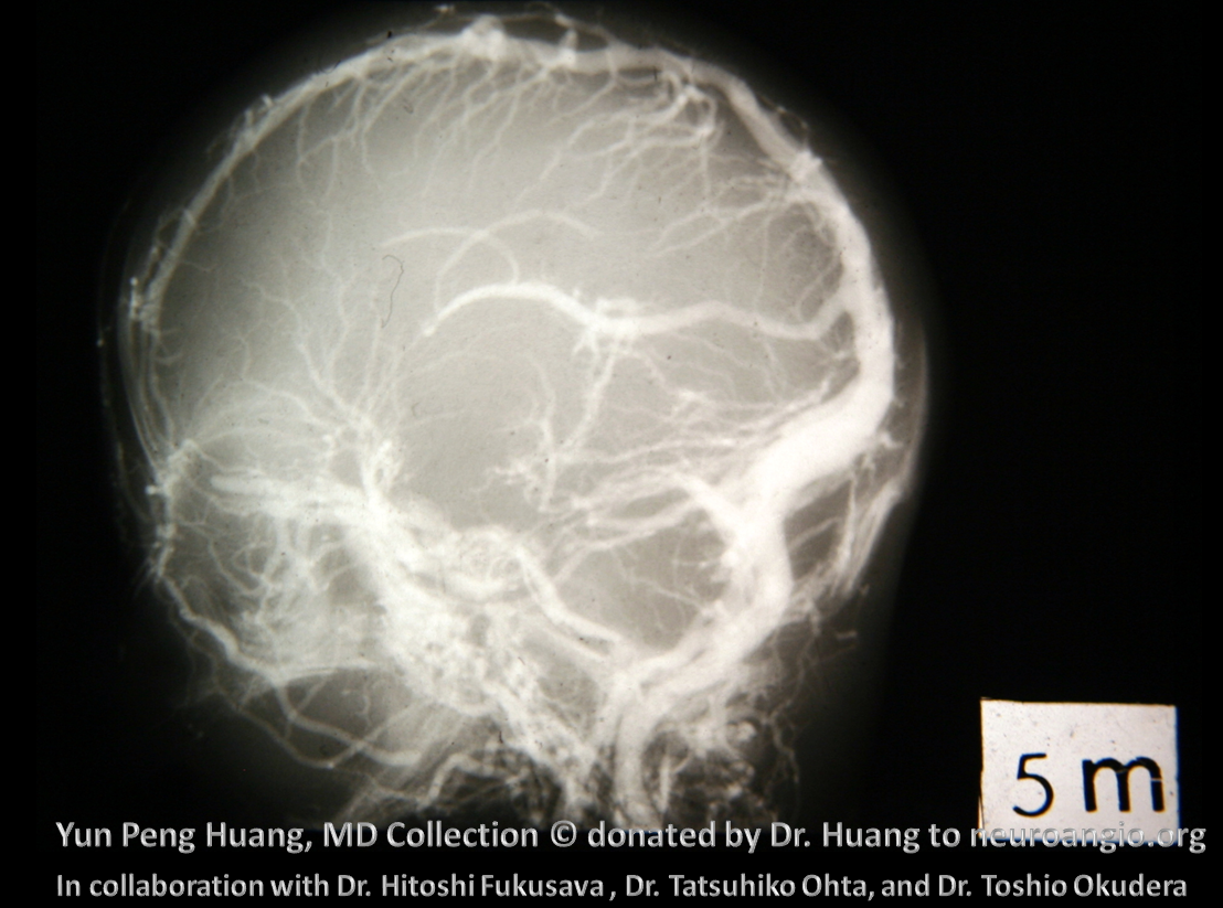 Yun Peng Huang Collection Embryology