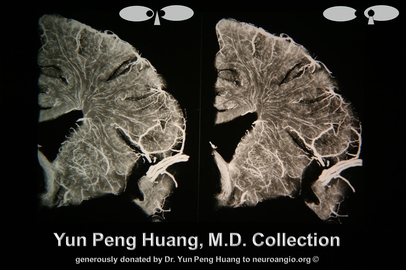 Yun Peng Huang MD transmedullary veins