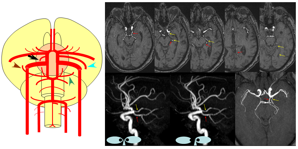 Persistent Trigeminal Artery Incidence Persistent Trigeminal Artery